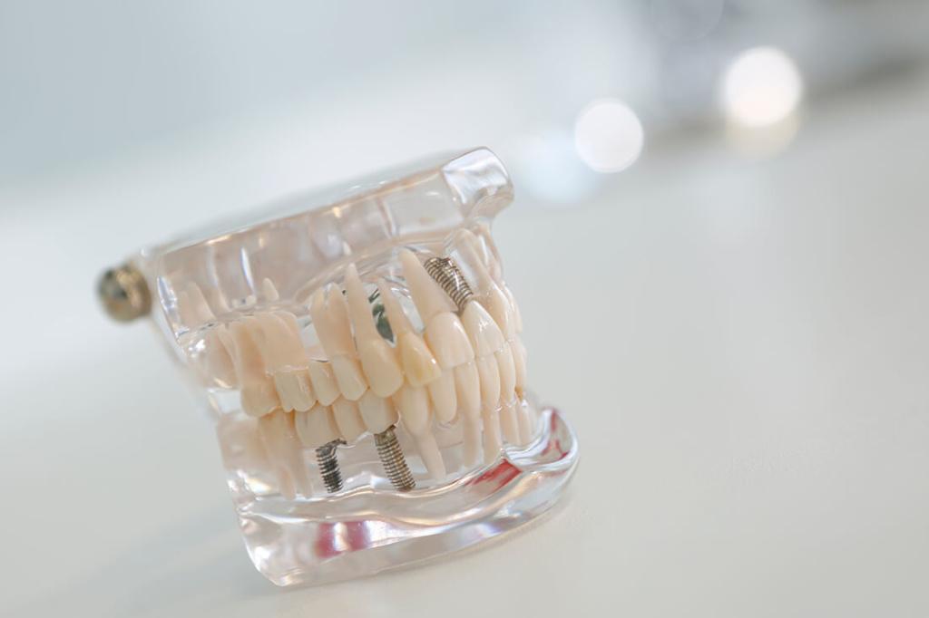 Zahnärzte Bordesholm - Dr. Angelika Abend - Leistungen - hochwertige Implantate